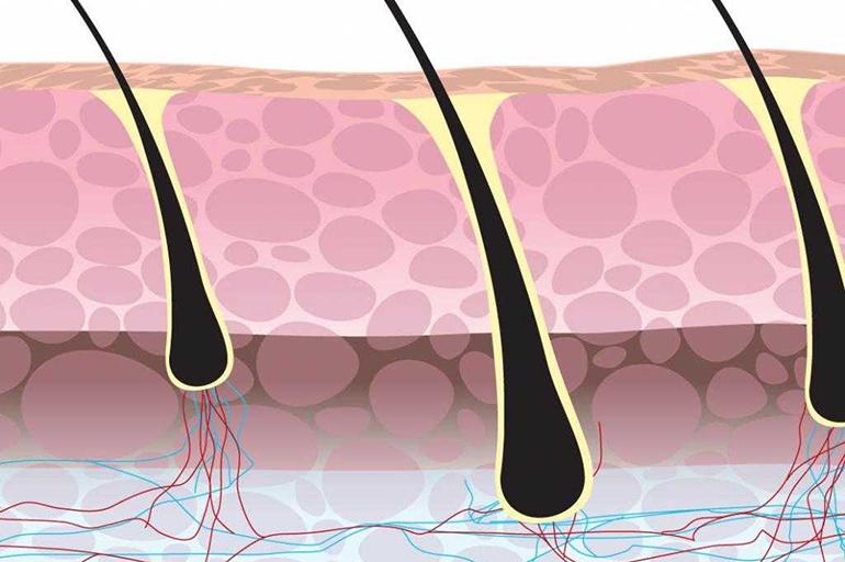 Разрушение волосяных фолликулов